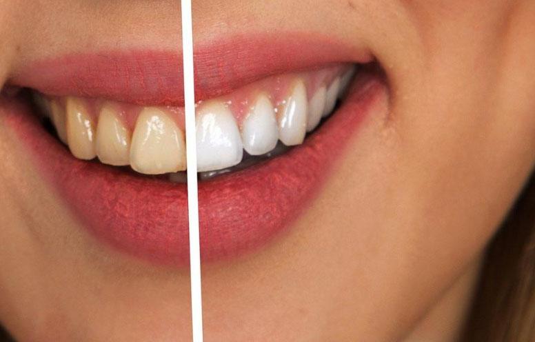 blanquear dientes clinicas uax